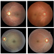 Four images of the back of the eye (fundus photography) showing various ratios of optic cup to disc as measured by Watson. An increased optic cup to disc ratio could be a sign of Glaucoma. Watson is also capable of determining between left and right eye imag