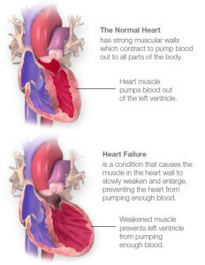 Illustration of a normal and a weakened heart characteristic of heart failure © American Heart Association, Inc.