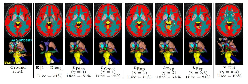 Neural network for medical image analysis