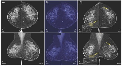Ai Models Predict Breast Cancer With Radiologist Level Accuracy