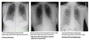 Figure 5. Upper row, sample chest X-rays depicting different findings. Second row shows the actual labels used for training and prediction. The last row gives an appropriate sentence to describe the finding in words.