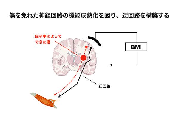 脳の損傷と迂回路
