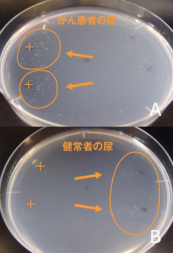 尿に対する線虫C・エレガンスの走性。開始から30分後のシャーレの写真。がん患者の尿(写真Aの+印)には寄って行き、健常者の尿(写真Bの+印)からは逃げて行く。(写真提供:廣津氏)