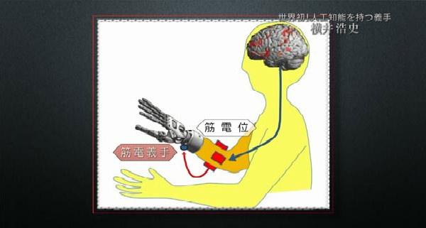 人間が筋肉を動かそうとすると「筋電位」が発生する。その信号を感知し、モーターで義手を動かす