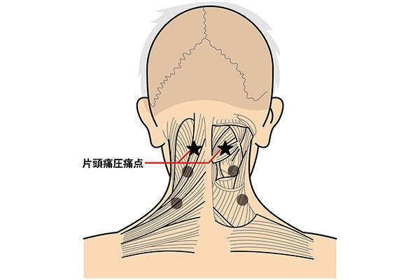 片頭痛圧痛点の位置