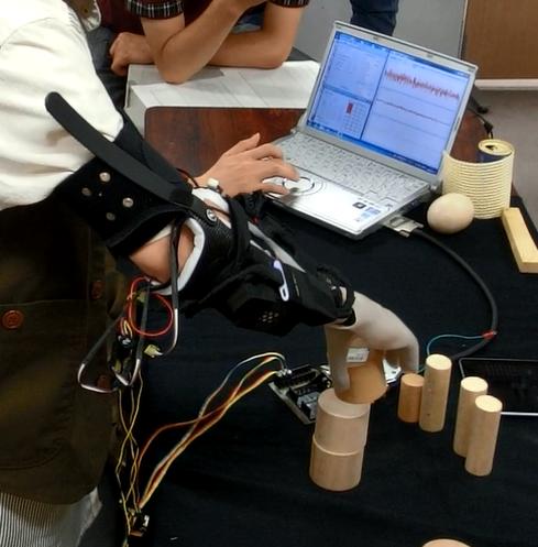 パソコンを使って装着した筋電義手にさまざまな動きのパターンを記憶させる