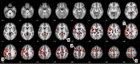 Ici, nous voyons les régions du cerveau qui montraient une différence statistiquement importante entre les patients atteints de schizophrénie et les patients qui ne le sont pas. Par exemple, la flèche 1 identifie la circonvolution frontale ascendante, ou le cortex moteur, et la flèche 5 indique le précuneus qui touche le traitement de l'information visuelle.